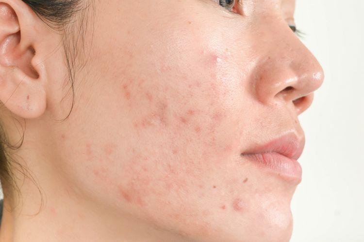 Tidak Hanya Makeup Tapi Kebiasaan Ini Sumber Penyebab Jerawat Loh!